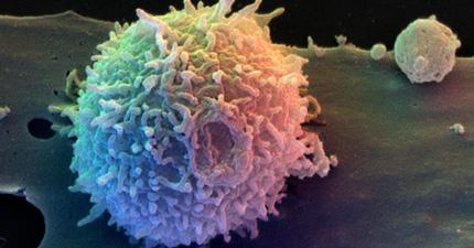 不可能が可能に!? 花粉症を撃退する免疫細胞「Tレグ」が遂に発見される