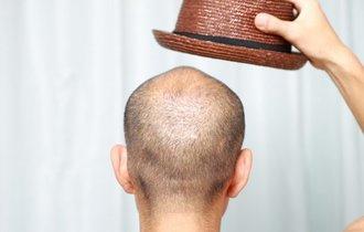 帽子をかぶるとハゲるは本当か? 都市伝説を専門家が検証すると……